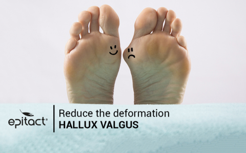 Hallux valgus : how to reduce bunion deformation?